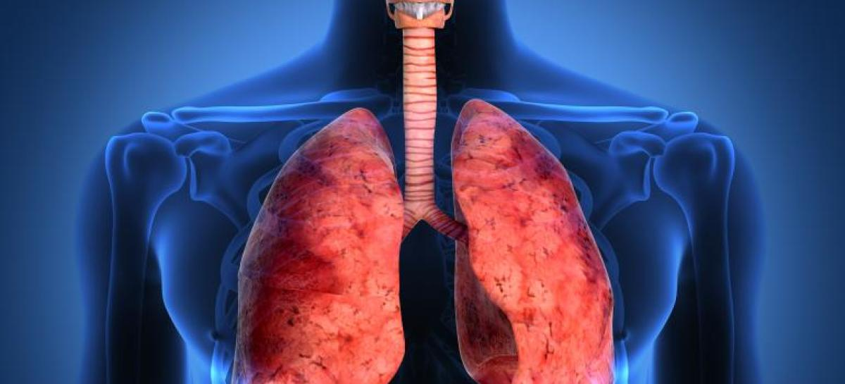 Unapproved Lung Device Keeps Cystic Fibrosis Patient Alive Long Enough For Transplant; Currently Awaiting FDA Approval