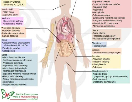 Objawy mukowiscydozy – PTWM