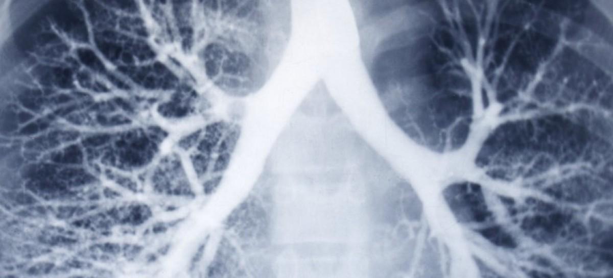 Pierwsze na świecie leczenie mukowiscydozy może być dostępne w ciągu 5 lat?