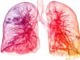 Nanocząstki umożliwiają terapię genową mukowiscydozy