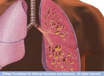 Jak Mukowiscydoza wpływa oddychanie i płuca