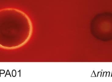 Naukowcy unieruchamiają zakaźne bakterie przez usuwanie kluczowego białka