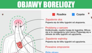 Jakie są pierwsze objawy boreliozy – choroby przenoszonej przez kleszcze?