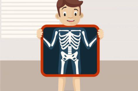 Kości muszą być kontrolowane u pacjentów z mukowiscydozą