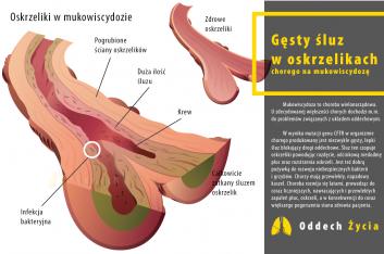 Śluz w oskrzelikach osoby chorej na mukowiscydozę.